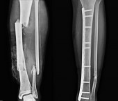 X-ray Lt.leg AP.Fracture fibula and mid shaft tibia with Oost ORIF with plates and screws.
