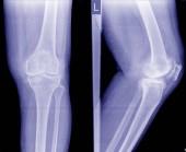 Osteoartróza (Oa) koleno. Film rentgenové Apand boční pohled kolena ukazují úzká kloubní štěrbiny, subchondrální skleróza, osteofytů (spur), zánět kolenního kloubu.