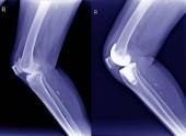 Osteoartrite giusto di knee(Oa) a raggi x e post operazione arthroplasty totale del ginocchio (Tka) Visualizza.