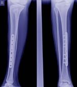 Zlomené nohy rentgeny obraz, x-ray obraz zlomenina nohy (tobia) implantát deskou a šroub.