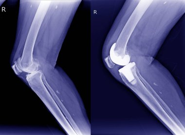 X-ray Right Osteoarthritis of knee(OA) and post operation Total Knee Arthroplasty( TKA)view.