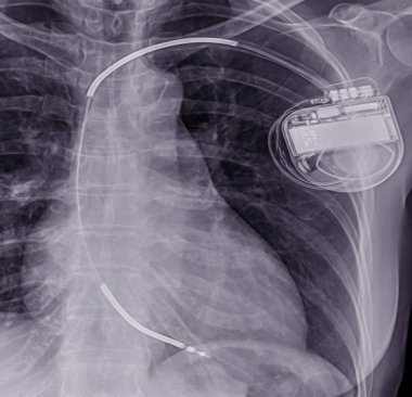 Close up Chest x-ray showing Pacemaker