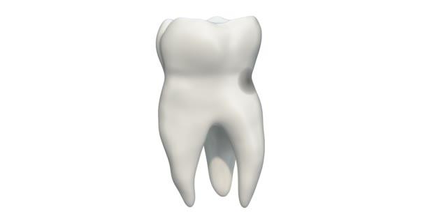 Zahn mit Karies, 3D-Animation. 3D-Darstellung isoliert auf weißem Hintergrund