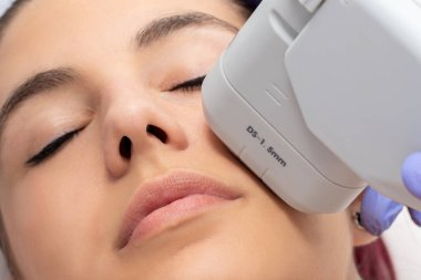 Woman receiving high intensity focused ultrasound treatment on face. Therapist doing cosmetic plasma lift on cheek with ultrasonic device.
