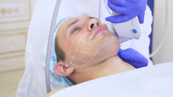 Non-surgical face lifting. SMAS lifting ultrasonic. The process of rejuvenation. Hardware cosmetology. contour face plastic. hands of a dermatologist doctor make a man an ultrasound facelift