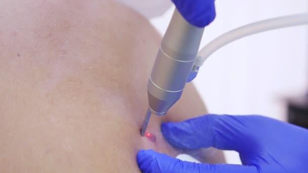Der Hautarzt verbrennt mit einem Laserstrahl ein Muttermal auf dem Rücken eines Mannes. 4k, Nahaufnahme. Zeitlupe