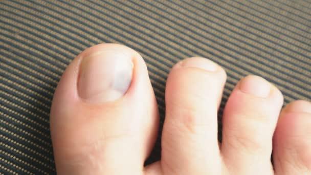 Nemocný nehet. Trauma na nehet. Prsty na nohou. Modřina pod nehtem palce. Trauma na nehty. Sugunal hematom.