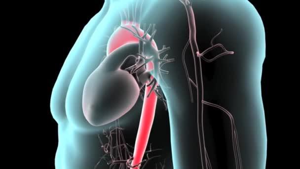 břišní aorty