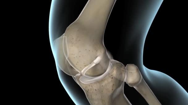 Cirugía de ligamento cruzado anterior LCA — Vídeo de stock ...