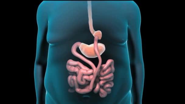 bariatric surgey 3d animation