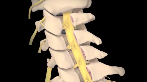 Spinal Cord Under Pressure Of Bulging Disc 3D animation