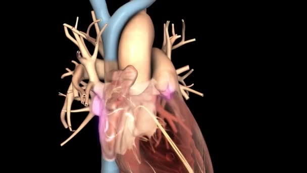 Atrial Fibrillation  3D animation