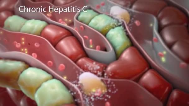 3D animatied chronické hepatitidy C