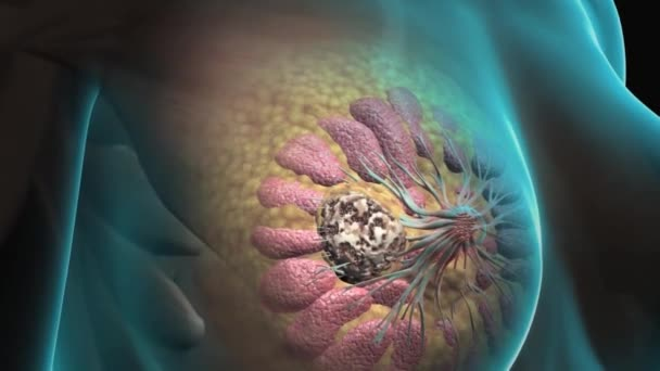Breast Cancer, Ductal Carcinoma