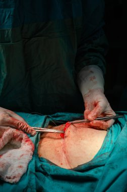 A surgeon is stitching a wound after an operation in a hospital