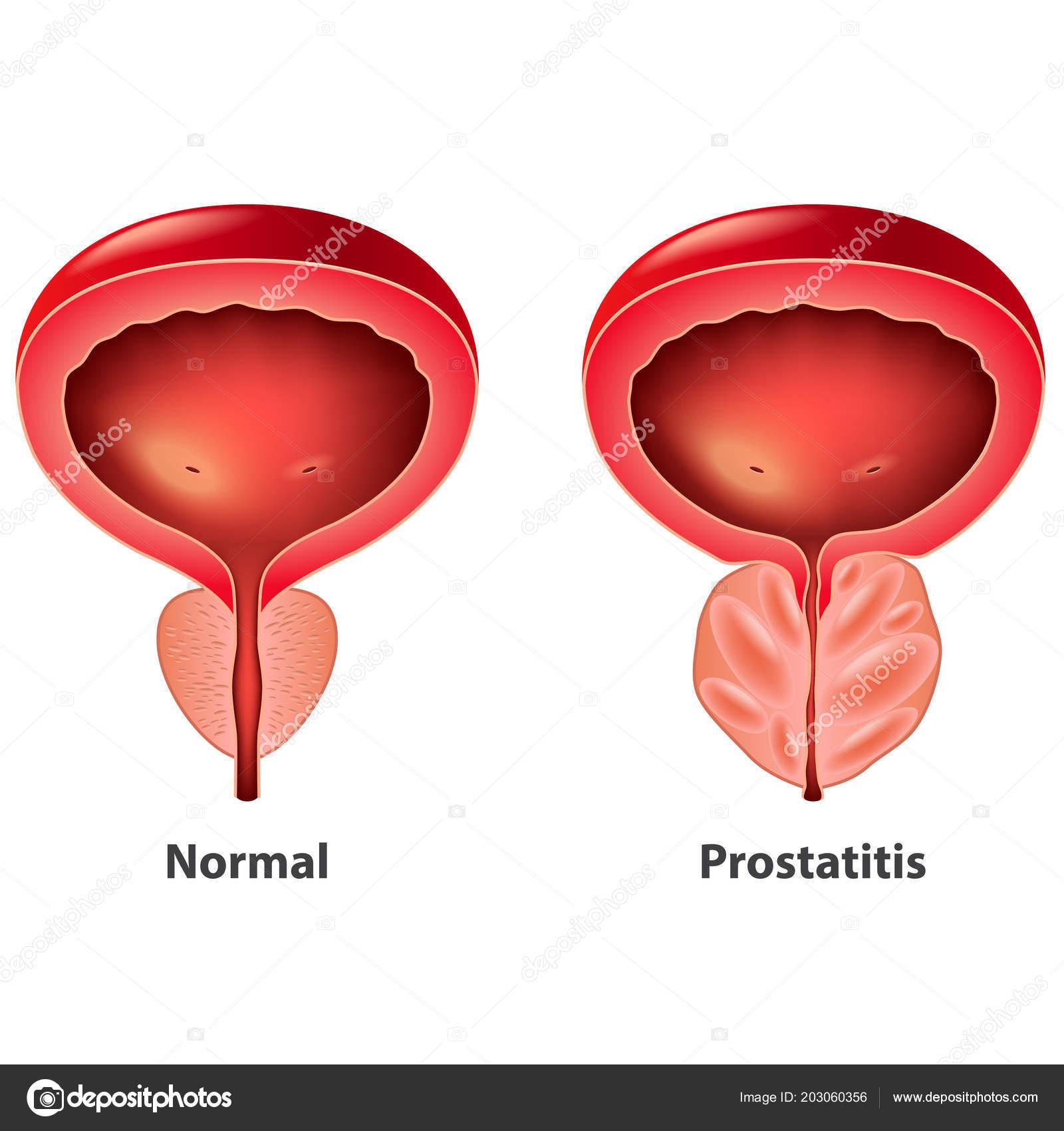 Prostatitis a CMV- től)