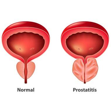 Prostatitis férfi 43 év)