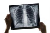 Fotografie Untersuchung einer Brust-Röntgenaufnahme