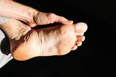 fungus on the foot of the foot. A close-up photograph of a male foot.