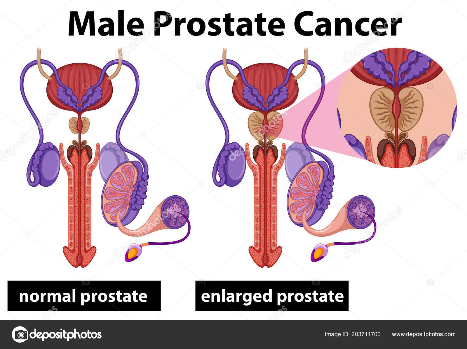 Illustration Cancer Prostate Masculin Humaine — Image vectorielle ...