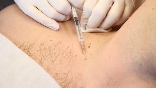 Papillom Behandlung bei Männern