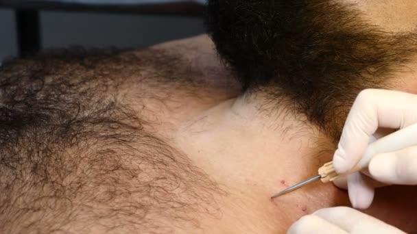 in der Klinik. Nahaufnahme eines Mannes, der sich einem medizinischen Eingriff unterzieht. Kosmetikerin mit Handschuhen, die Maulwurf und Papillome entfernt. 4k
