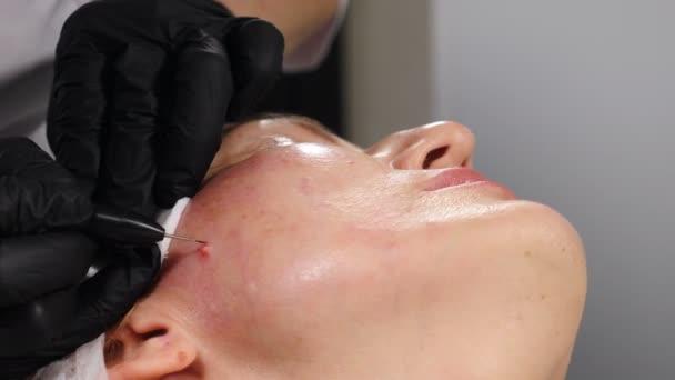 Elektrokoagulation von Papillomen. Kosmetikerin entfernt Maulwurf in einem chirurgischen Eingriff, indem sie ihn mit medizinischen Werkzeugen und Geräten auf der Gesichtshaut verbrennt. 4 k Video