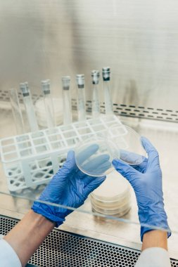 cropped image of biologist in latex gloves working with petri dishes in modern laboratory