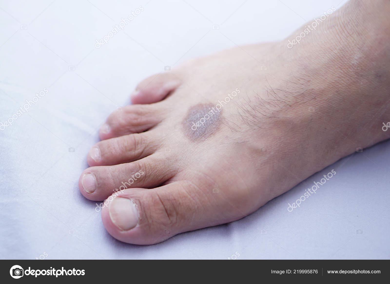 Tmavé hrubé nohy