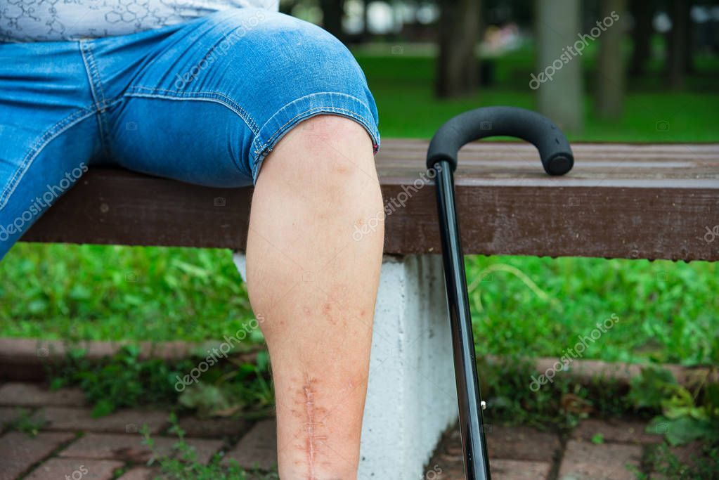 Scared leg of disabled person on the bench with a cane in the Park