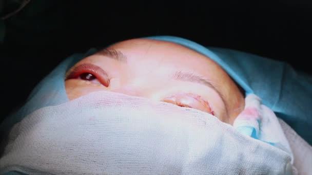 Der Chirurg führt eine Operation an den Augen durch, in Großaufnahme. Korrektur der. der Arzt führt Blepharoplastik durch. Operation im Operationssaal.