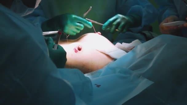 Chirurgen und OP-Team sind Schönheitsoperationen auf Brüste im Krankenhaus-OP durchführen. Entwässerung-Installation. Brustvergrößerung. Mammoplastik. Brust-Vergrößerung. Chirurgie-detail.