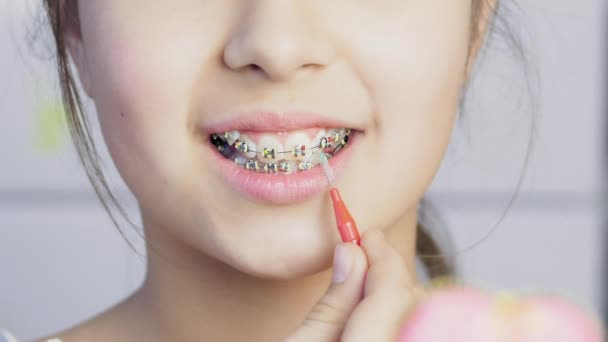Teen girl cleaning and brushing teeth with clear metal braces