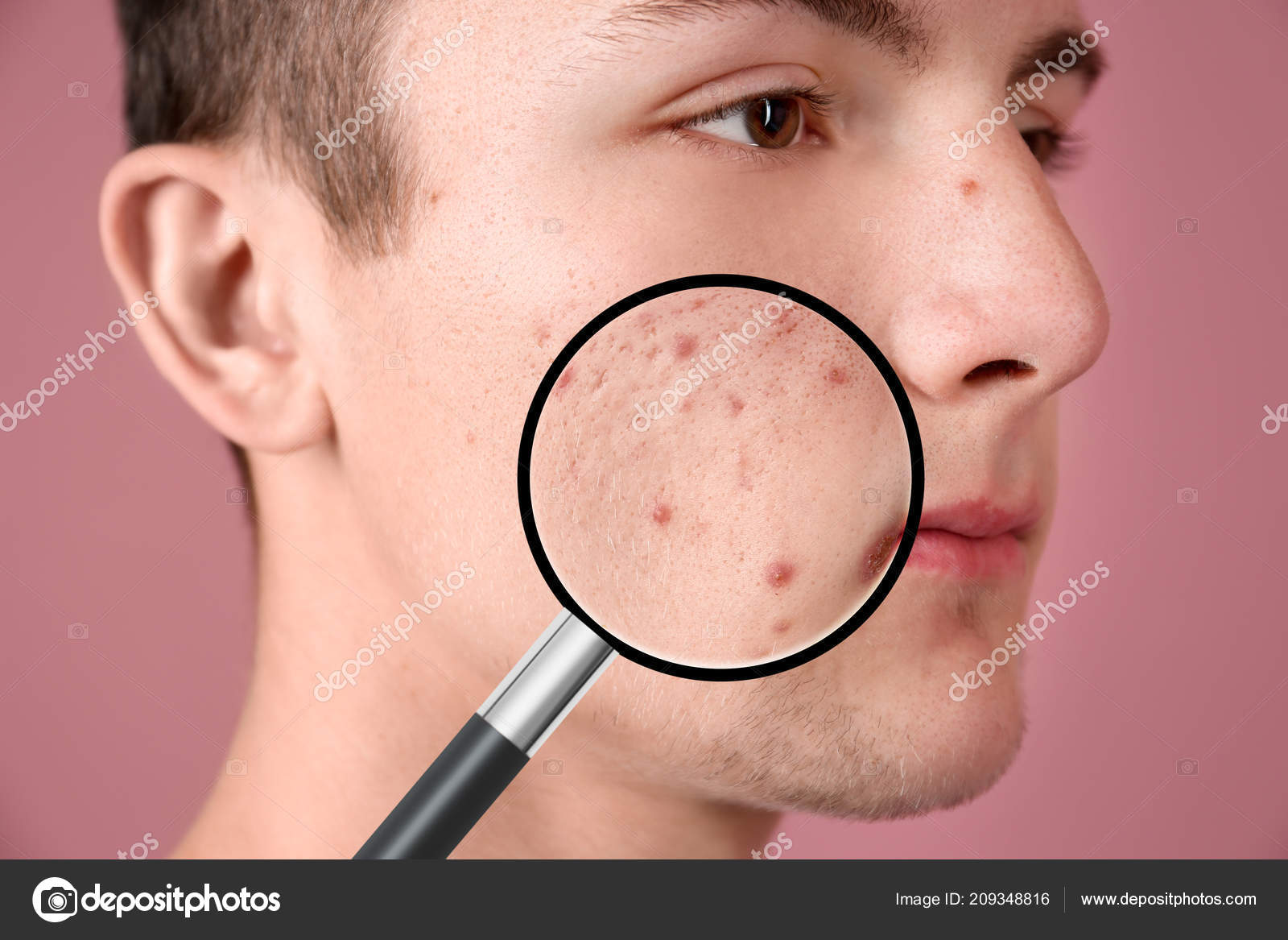 Magnifying Young Man Skin Acne Problem Color Background — Стоковое ...