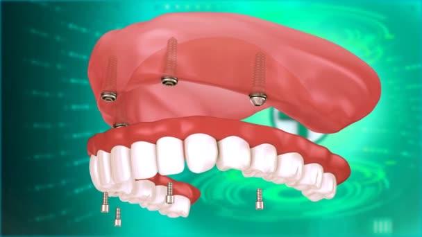 Zubní implantát Zuby Medical