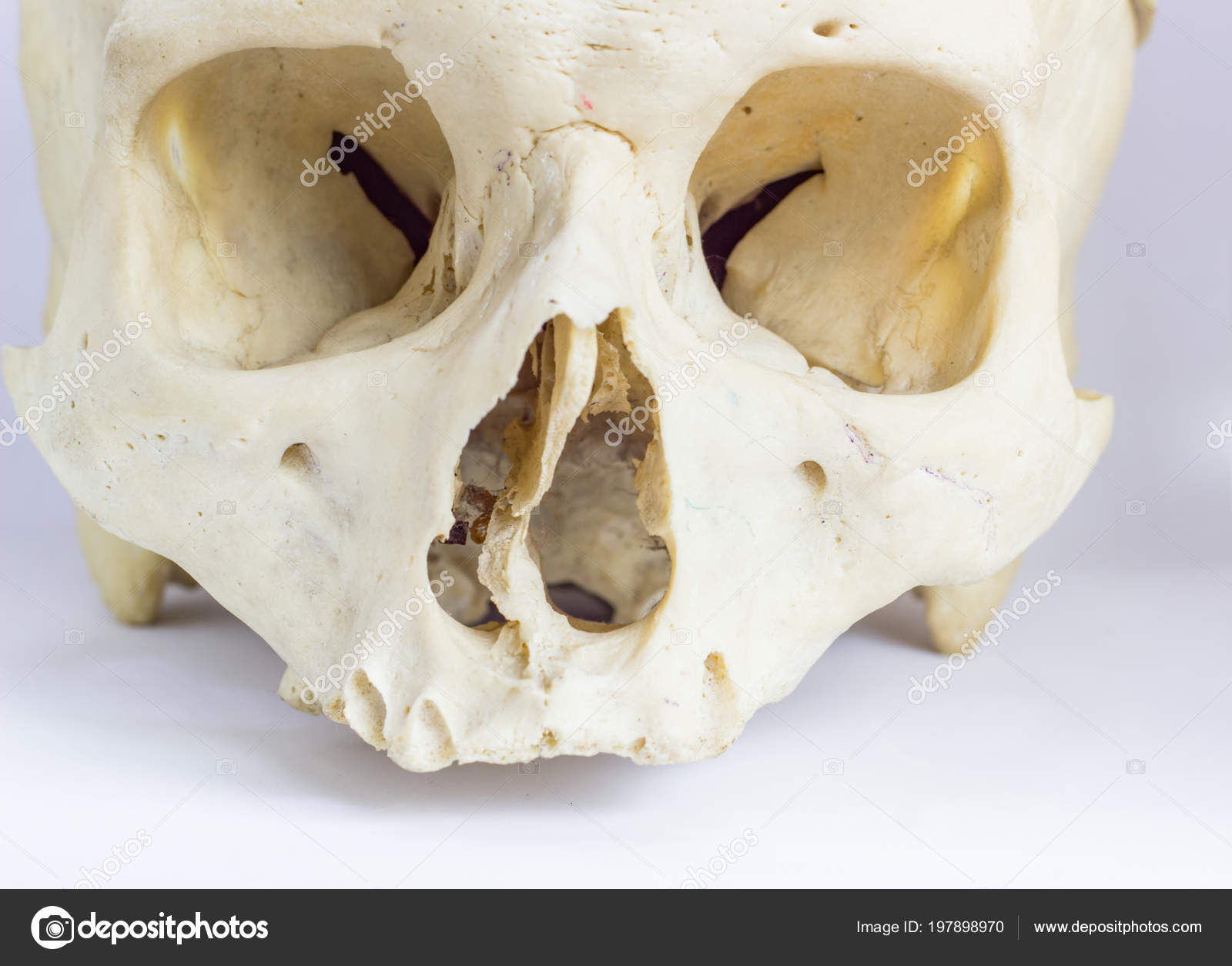 Close Macro View Human Skull Bone Showing Anatomy Nasal Foramen
