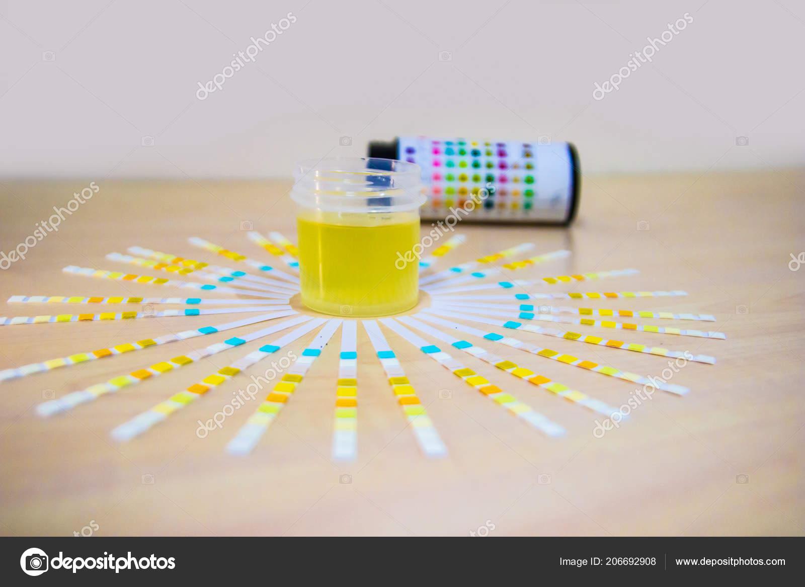 urinprov protein