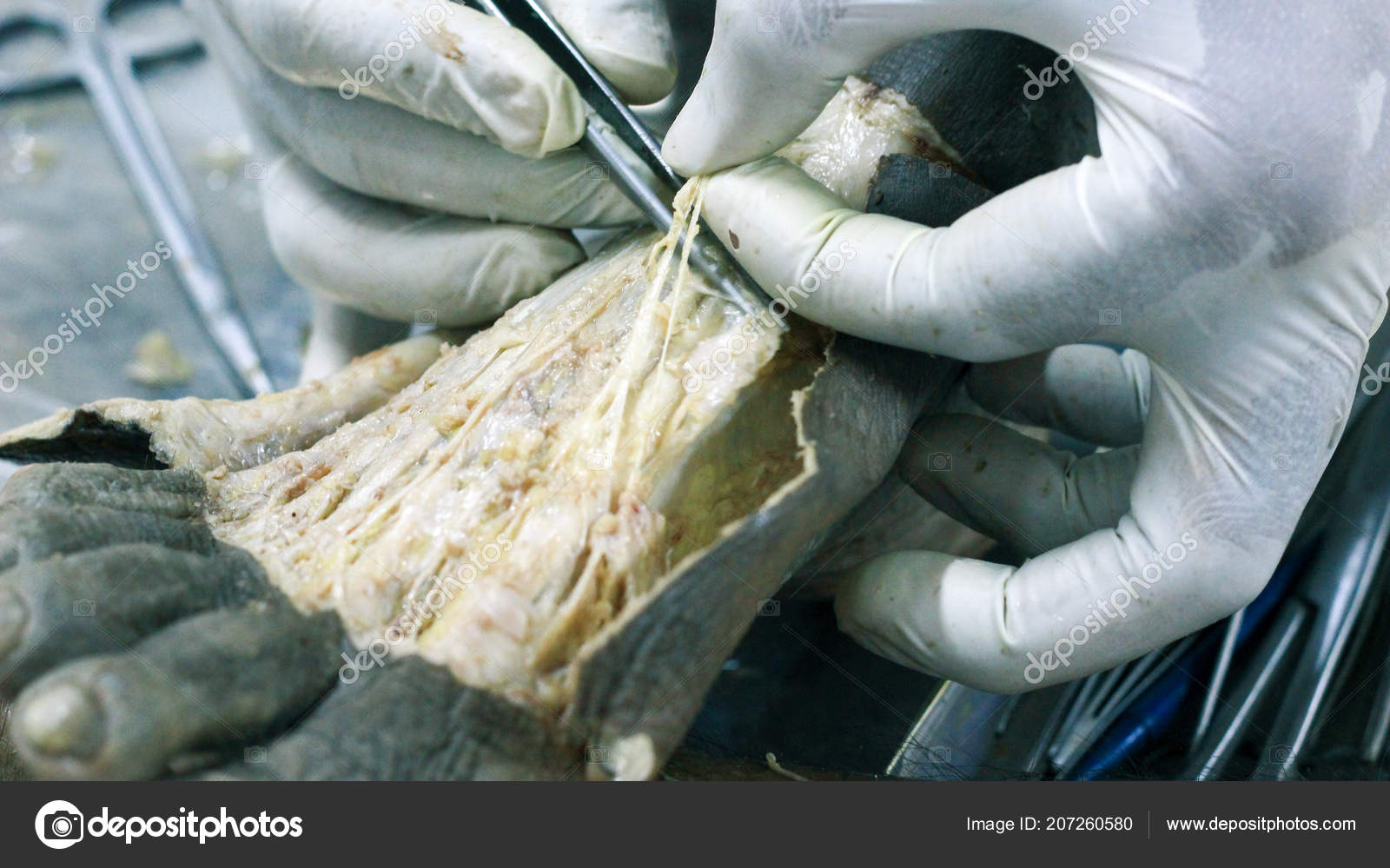 Anatomy Dissection Cadaver Showing Dorsum Foot Using Scalpel ...