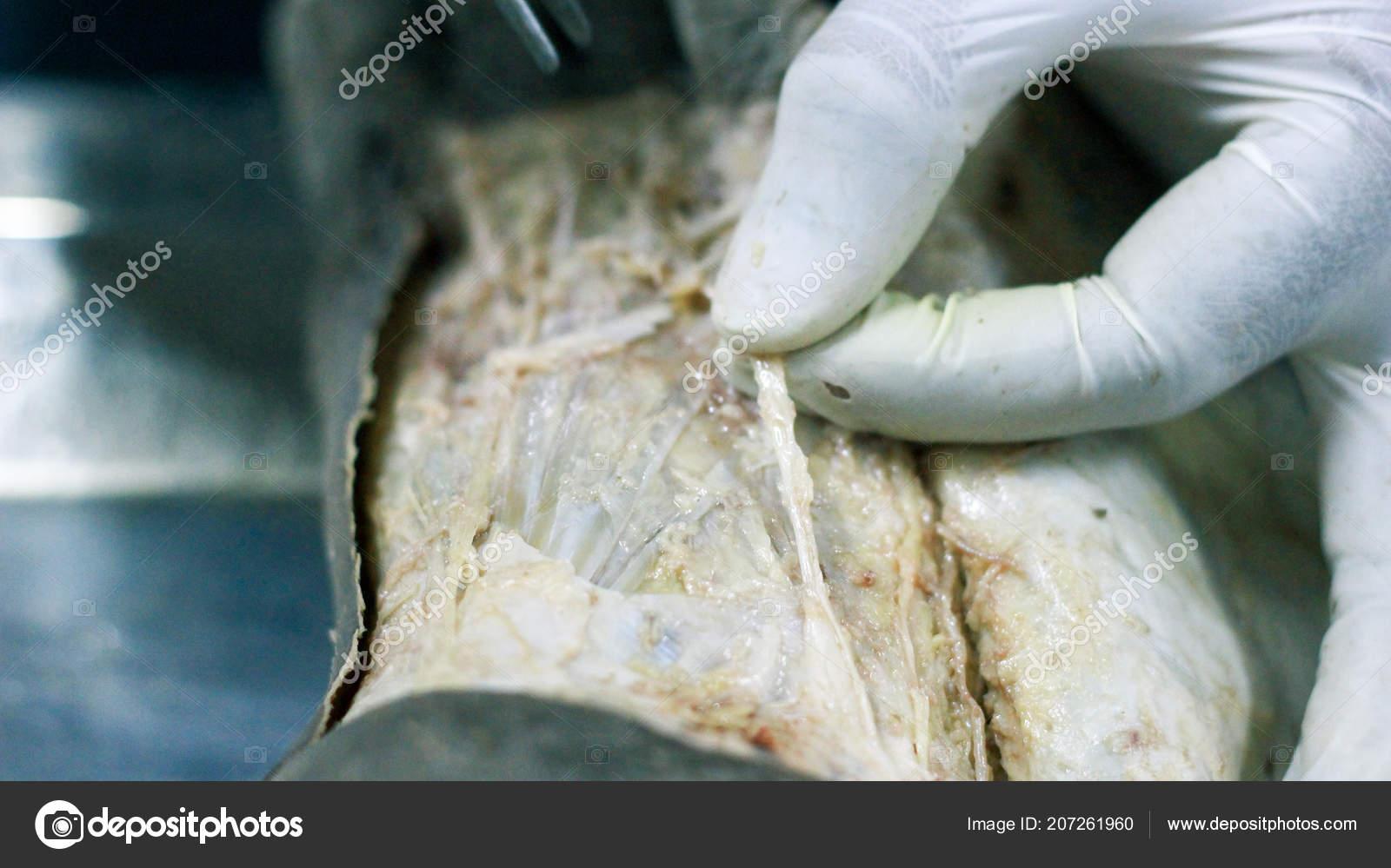 Anatomy Dissection Cadaver Showing Dorsum Foot Using Scalpel ...