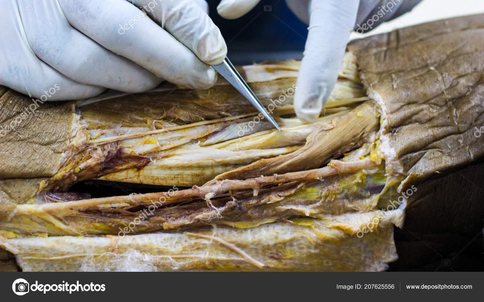 Anatomy Dissection Cadaver Showing Adductor Canal Using Scalpel ...