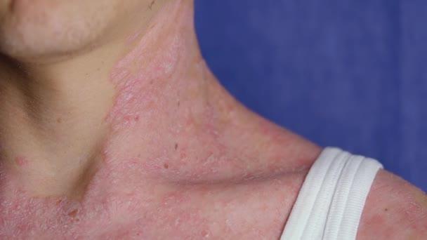 huidaandoeningen rode vlekken