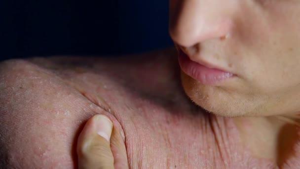 dospělý člověk je zkoumání jeho nemocné kůže psoriázou, dotýkat rukama, detail osazení