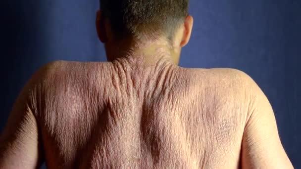 pacient projevuje svou kůži zad zahrnuty psoriáza v temné místnosti, pohybující se ramena