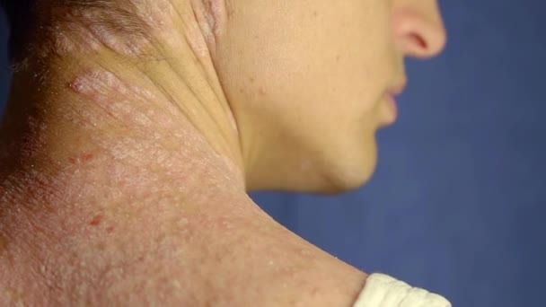 young man with psoriasis is touching his dry, itchy, and scaly skin on neck and back