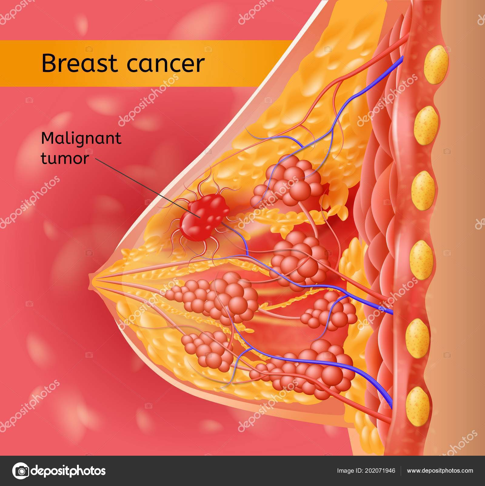 Womans Brest Cancer Vector Anatomical Scheme — Stock Vector ...