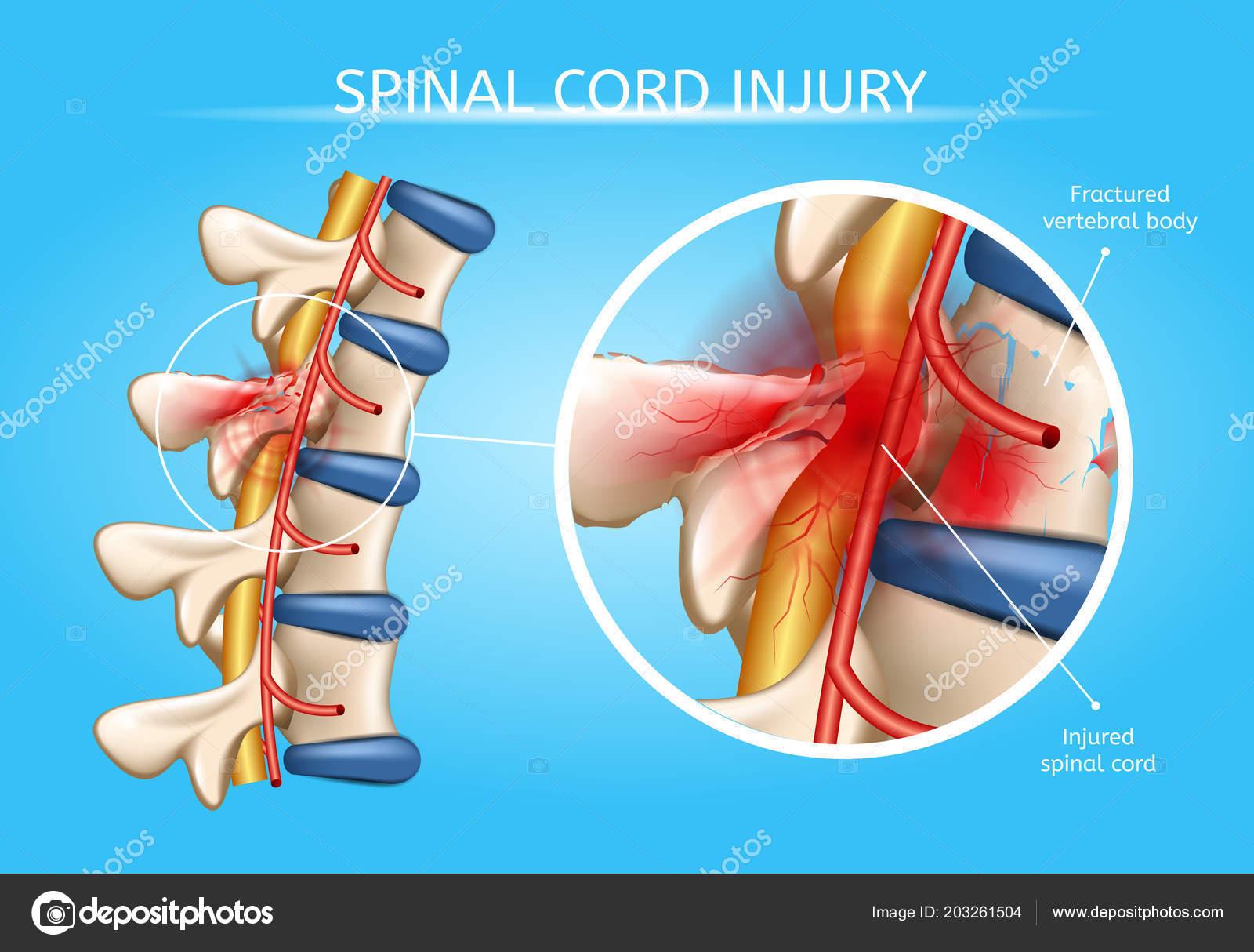 Humana de la médula espinal lesiones anatómicas Vector esquema ...