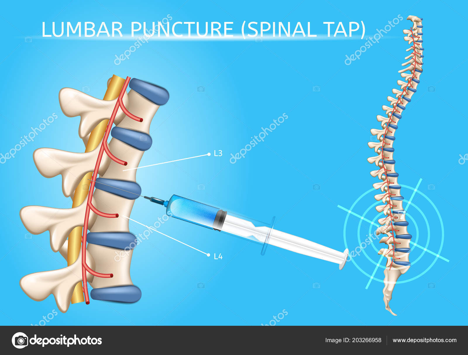 Lumbar Puncture Realistic Vector Medical Scheme — Stock Vector ...