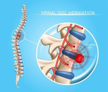 Spinal Disk Herniation Vector Medical Scheme
