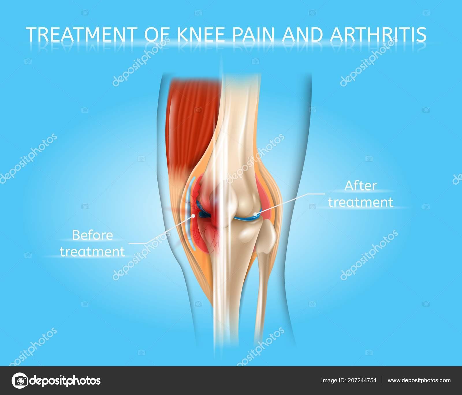 térd kenőcső osteoarthritis)