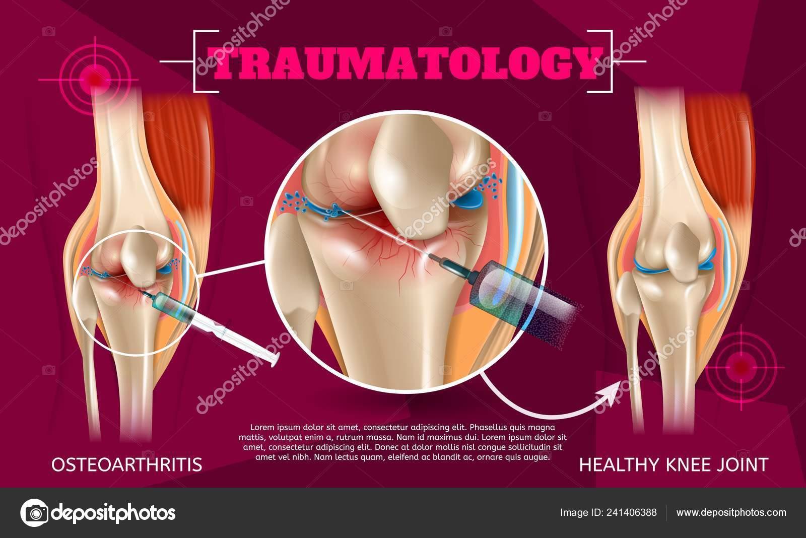 Realistic Illustration Traumatology Medicine Vector Banner Image